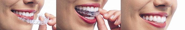 Ortodoncia Invisalign Badalona - MIM Espai Dental Badalona